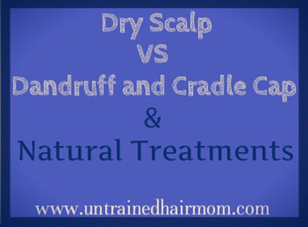 Dry Scalp vs Dandruff or Cradle Cap Natural treatments